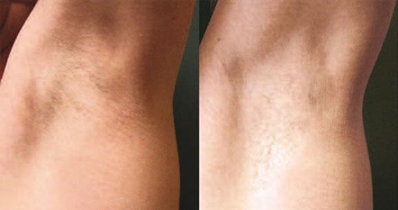 laser hårborttagning före efter
